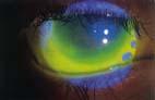 Slerale in Fluorescina