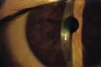 Occhio  Sinistro