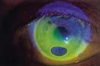 Os Sclerale in Fluorescina