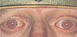 Foto A – paziente albino con lenti sclerali trasparenti.