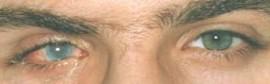 Foto A – paziente con cornea opacizzata occhio ds.
