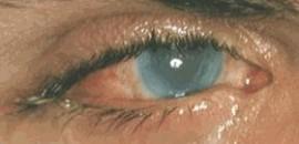 Foto B – dettaglio cornea opacizzata.