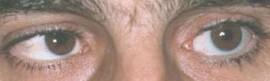 Foto C – buona riproduzione della motilià oculare.