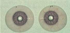 Foto C – lenti cosmetiche da calco finite con potere incorporato per albinismo.