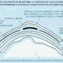 Foto D: schema di una protesi in resina a guscio.