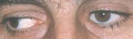Foto D – buona riproduzione della motilià oculare.