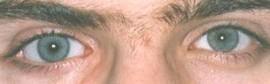 Foto F – paziente con la lente cosmetica applicata.